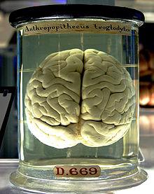 5 Chimp Brain In A Jar